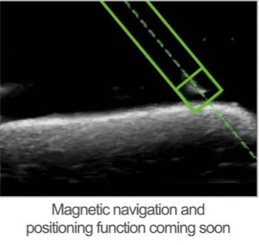 Mini Linear Ultrasound Scanner needle position