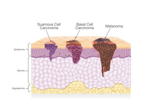 The Use of Ultrasound Scanners in Skin Tumor Removal